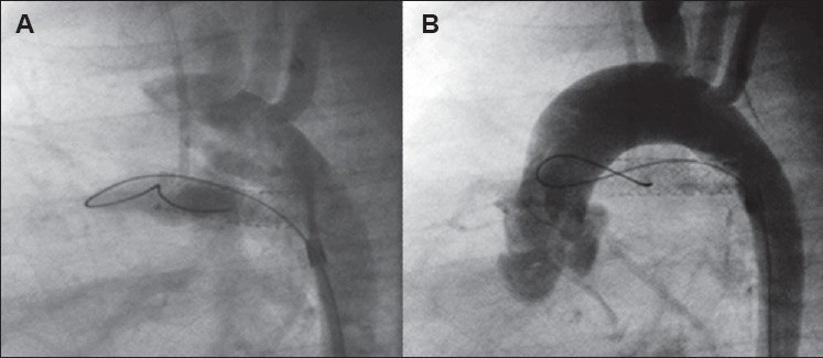 Figure 7: Acute stent thrombosis. (A) Immediate post-stent expansion is showing - good flow through the stented ductus. (B) Ten minutes post-expansion. The guidewire is still across the stent. There is rapidly falling oxygen saturation with very severe desaturation. The entire stent is filled with thrombus