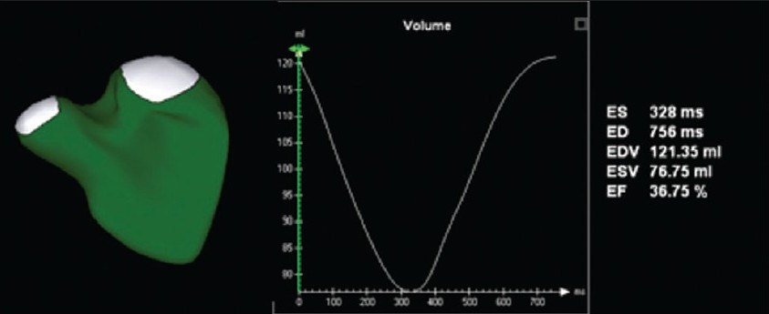 Figure 4: Novel software provides the ability to measure right ventricular volume throughout the cardiac cycle. This yields a surface-rendered model that is displayed as a mesh of lines and points. The change in volume is represented graphically, with time on the X axis and volume on the Y axis