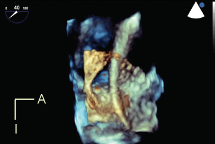 Figure 6: Live 3D transesophageal echocardiography demonstrates a catheter passing through a large atrial septal defect. The viewing perspective is unique: the observer is virtually located within the left atrium, looking rightwards. A, anterior; I, inferior