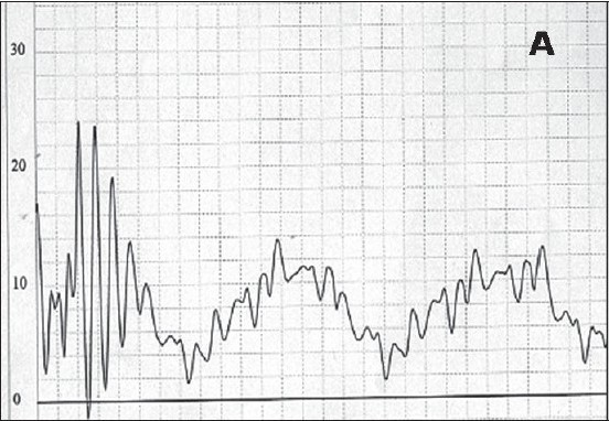 Figure 2a :Pulmonary artery pressure tracings. (A) baseline pressure trace showing low pressure with poor waveforms.