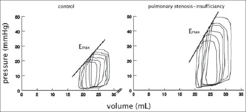 Figure 2 :Representative right ventricular pressure-volume loop of a pig with combined pulmonary stenosis and insufficiency and a control animal (measured at rest) at 3 month follow-up. Emax, slope of end-diastolic pressure-volume relation. (from Kuehne et al, 2005, used by permission)