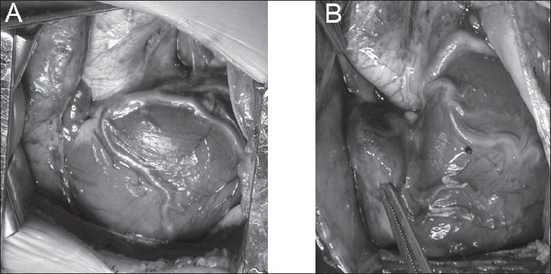 Figure 6 :(A) LAD from the RCA, (B) all coronaries arising from the right sinus. Both situations would be problematic for a transventricular repair, but both patients had successful transatrial-transpulmonary repairs