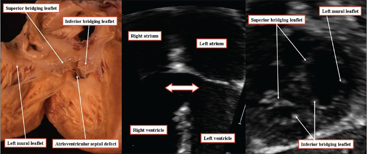 Figure 12: The anatomic image (left hand panel) and the echocardiograms (middle and right hand panels) are from different patients. They show how an atrioventricular septal defect with common atrioventricular junction can be arranged to permit only ventricular shunting when the bridging leaflets of the common atrioventricular valve are fused to the leading edge of the atrial septum. The right hand panel, in the short axis, confirms the trifoliate arrangement of the left atrioventricular valve