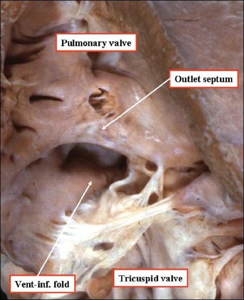 Figure 15: This anatomic image shows how defects with exclusively muscular borders can open to the outlet of the right ventricle
