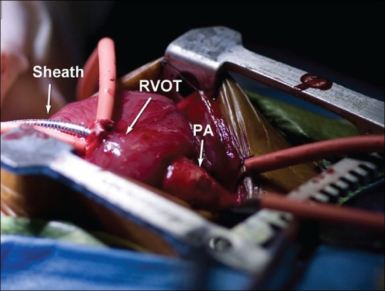 Figure 1 :Intra-operative photograph of the introducer sheath for placement of ductal stent (RVOT= right ventricular outflow tract, PA= pulmonary artery)