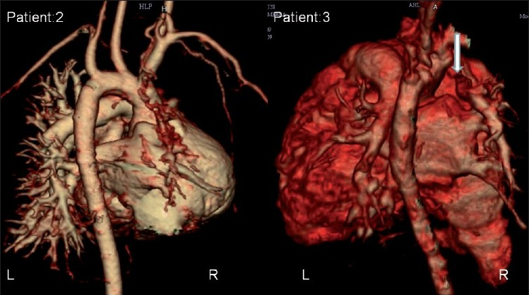 Isolated Absence Of Right Pulmonary Artery Singhi Ak Francis E