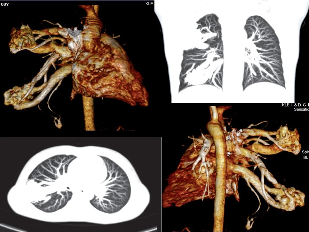 Figure 1 :CT pulmonary angiogram showing multiple pulmonary arterio venous malformations