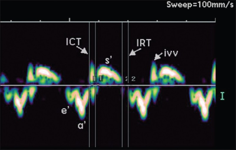 Figure 1: Pulsed-wave doppler tissue doppler tracing in a normal fetus