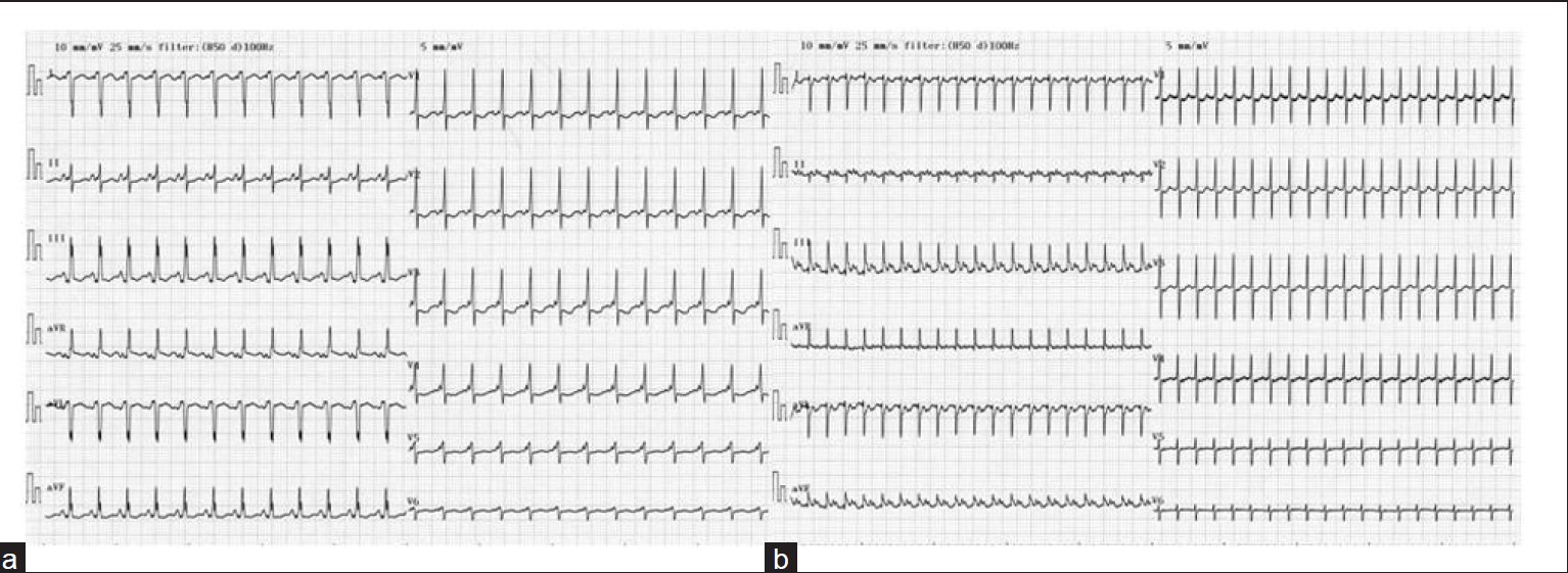 Figure 3: Electrocardiogram of the sinus rhythm showed pre-excitation (a) and supraventricular tachycardia (b)