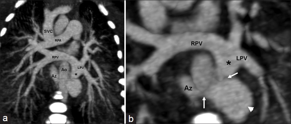 Figure 1: (a) Coronal oblique thick multi-planar reconstruction (MPR) of computed tomography angiogram (CTA). This reveals the right- and left-sided pulmonary veins (RPV and LPV, respectively) joining together to form a descending common chamber (*) to the left of the thoracic aorta (Ao). Increased attenuation along bronchovascular bundles in both lungs is consistent with pulmonary edema. (b) Zoomed-up view of a thin MPR in the same plane shows stenoses at two sites in the common chamber (*). The first obstruction (white arrow) is followed by a dilatation (white arrowhed). The second narrowing (white arrow) is at the site of drainage into azygos vein (Az)