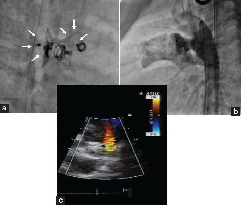 Figure 3: (a) ADO II (small arrows) placed adjacent to the previously implanted Cocoon duct occluder. (b) Aortogram after deployment of the ADO II showing good position of both devices and the coil inside the device. There was a marginal reduction in the shunt through the device. (c) Echocardiography before discharge showing significant reduction in the shunt flow to a restrictive low velocity shunt