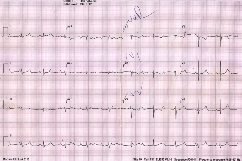 Figure 1: Complete heart block persisting nearly a month after recovery from proven diphtheria myocarditis in a 5-year-old child