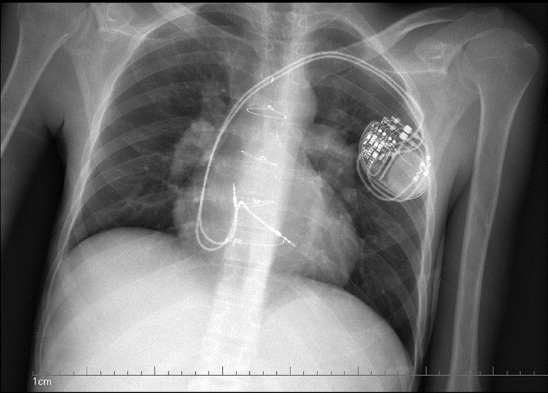 Single chamber icd placement Coding Dual Chamber Pacemaker