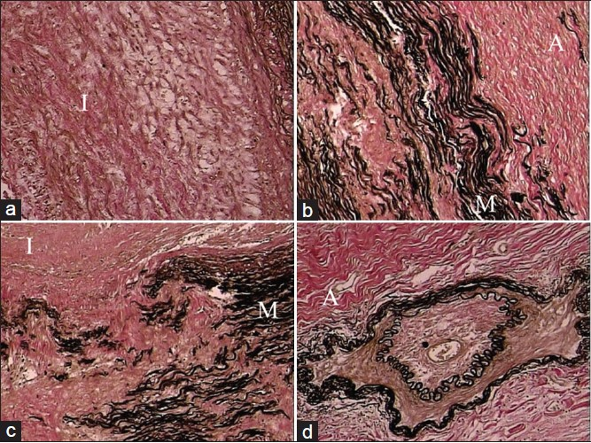 Figure 2: Healed phase of TA in descending thoracic aorta: (a) Loose fibrocellular thickening of the intima (I); (b) junctional area between intima (I) and media (M) showing destruction of the elastic lamellae/smooth muscle with replacement fibrosis; (c) similar features are also seen toward the outer third of the media (M) and adventitia (A); (d) fibrotic adventitia (A) showing endarteritis obliterans of a branch (elastic van Gieson, ×250)
