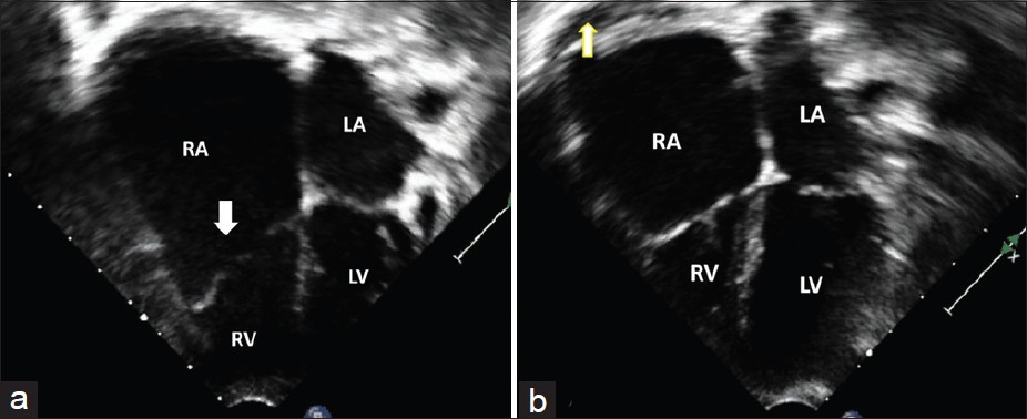 Figure 2: (a) Apical four chamber view showing a giant right atrium (RA), tricuspid valve is normal (arrow) (b) Post operative echocardiogram showing significant reduction in right atrial size and a small pericardial effusion behind the right atrium (arrow)