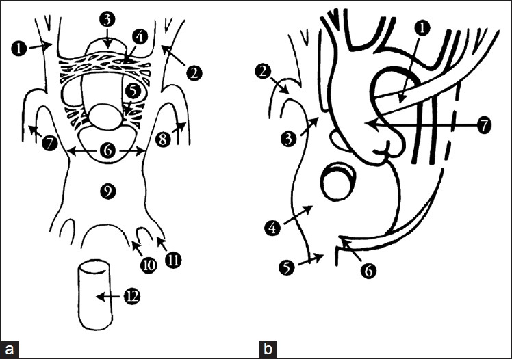 Figure 3: Schematic diagrams illustrating the development of retroaortic left innominate vein (RLIV) (a) In the sixth week of gestation: 1 - right anterior cardinal vein; 2 - left anterior cardinal vein; 3 - primitive aorta; 4 - superior transverse capillary plexus; 5 - inferior transverse capillary plexus; 6 - common cardinal veins; 7 - right posterior cardinal vein; 8 - left posterior cardinal vein; 9 - sinus venosus; 10 - vitelline vein; 11 - umbilical vein; 12 -developing inferior vena cava. (b) Retroaortic left innominate vein: 1 - innominate vein; 2 - azygos vein; 3 - superior vena cava; 4 - right atrium; 5 - inferior vena cava; 6 - coronary sinus; 7 - ascending aorta