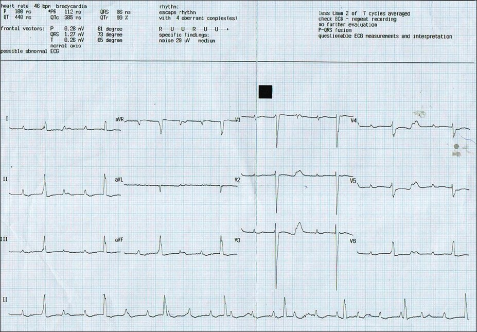 Remission of congenital complete heart block without anti ...