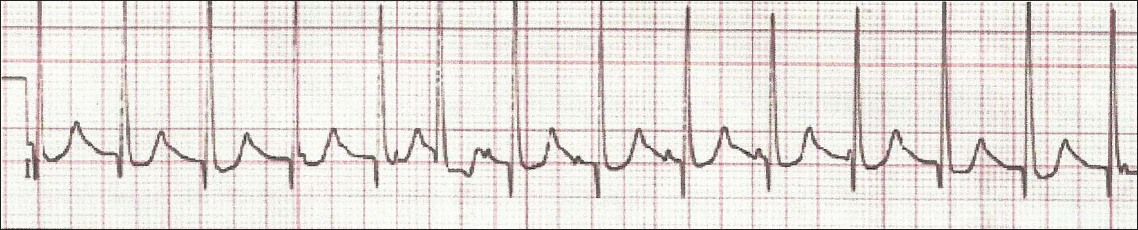 Figure 2: ECG of patient with JET using Lewis lead showing the P waves dissociated from QRS with atrial rate less than the ventricular rate