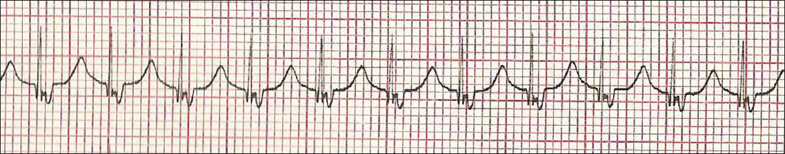 Figure 3: ECG using Lewis lead showing retrograde P wave with 1:1 ventriculoatrial conduction