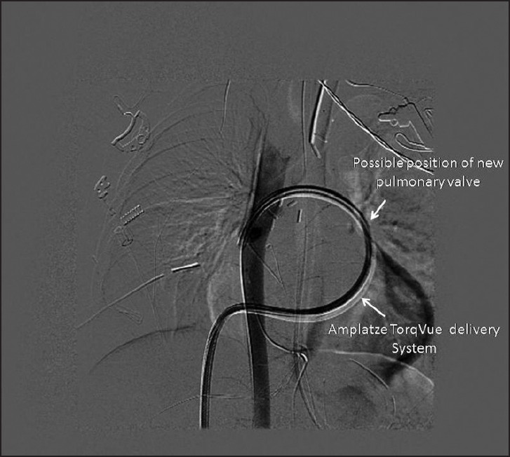 Figure 4: DSA image showing placement of Amplatzer TorqVue delivery system via the right femoral vein across the right atrium (RA), right ventricle (RV), and pulmonary valve, RPA into the DTA through the APC
