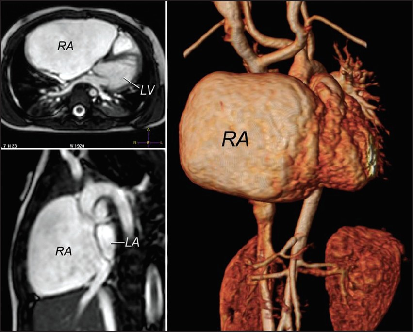 Figure 3: Cardiac MRI bright blood axial (upper left), bright blood parasagittal (lower left), and 3-D reconstruction (right) in case 1 showing the RA enlargement in comparison with the LA and LV. MRI: Magnetic resonance imaging, 3-D: Three-dimensional, RA: right atrium, LA: Left atrium, LV: Left ventricle