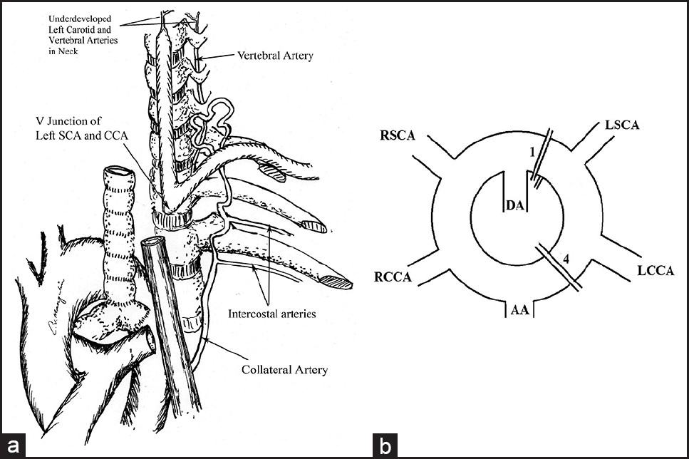 Right Aortic Arch With Isolation Of The Left Innominate Artery In A