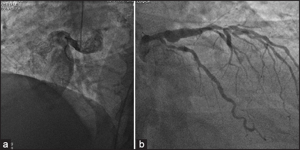Figure 2: Selective coronary angiogram. Right coronary injection (a) showed a giant proximal coronary artery (Video 2); left coronary injection (b) showed proximal left anterior descending coronary artery aneurysm with luminal irregularities