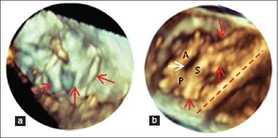 Figure 13: 3D echocardiographic image (right ventricular view) of normal tricuspid valve (TV) chordae (a: Red arrows). Short, thickened chordae (b: Red arrows) that significantly tethered and decreased the mobility of the septal leaflet (red line runs along the ventricular septum) resulting in a large coaptation defect (white arrow) between the septal and anterior/posterior leaflets. A: Anterior leaflet, P: Posterior leaflet, S: Septal leaflet