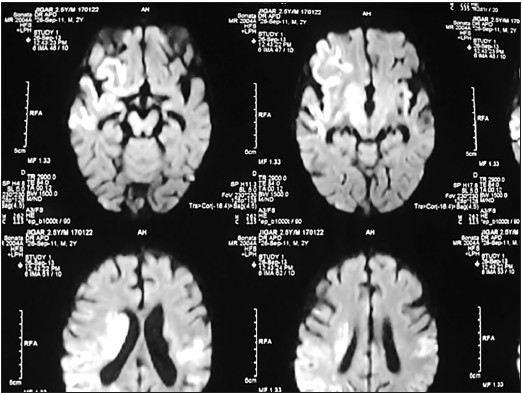 Figure 2: MRI Brain: Subacute infarcts with hemorrhagic transformation in right and left frontoparietal region and gangliothalamic complexes