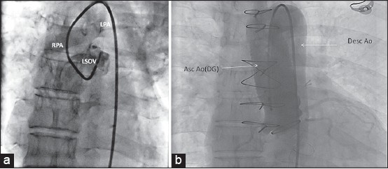 Figure 2: (a) Selective angiography in LSOV (AP view) shows opacification of pulmonary arteries across the rupture (black arrow) (b) Post-surgery angiography (AP view), reveals Dacron graft (DG) and absence of any aorto-pulmonary communication. LSOV: Left sinus of Valsalva, RPA: Right pulmonary artery, LPA: Left pulmonary artery, Asc: Ao ascending Aorta, Desc: Ao descending aorta
