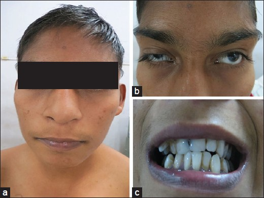 Figure 1: Frontal view photograph showed (a) typical coarse faces (microcephaly, thick and long eye brows, wide mouth, and bulbous nose); (b) synophres; (c) malocclusion