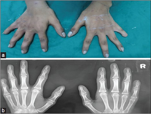 Figure 3: (a) The photograph of hands showed the left hand had shorter little finger with absence nail and (b) Radiographs of left hand showed absence of distal phalange of left little finger