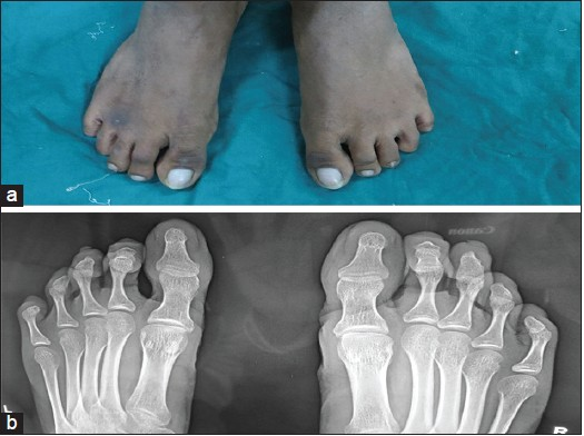 Figure 4: (a) The photograph of both right and left feet showed hypoplastic nails in both the fourth toes and (b) Radiographs of the feet normal