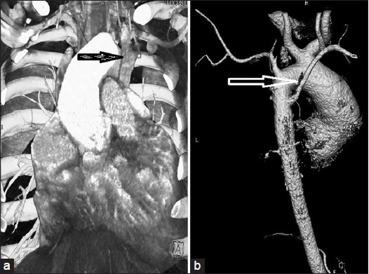Figure 5: 64 Slice Computerized Tomography (CT): The left-sided superior vena cava (a); Variant of aortic arch branching, the left common carotid artery originates separately from the innominate artery and the aberrant right subclavian artery arises from the aorta distal to the origin of the left subclavian artery (arteria lusoria) shown by black arrow (b)