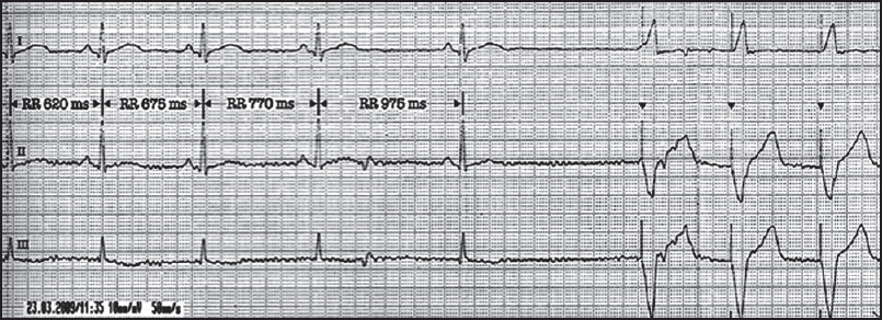 Figure 2: ECG showing VVI pacing at 100 bpm and a set hysteresis of 50 bpm during an episode of BHS. The patient was asymptomatic