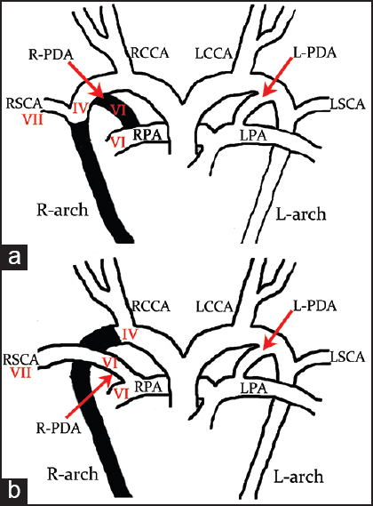 Figure 4: (a) Diagram of the normal embryological origin of the RSCA from the seventh (VII) intersegmental artery with subsequent cranial migration, and dissolution (in black) of the R-PDA and right fourth (IV) aortic arch (R-arch). (b) Isolation of the RSCA occurs when there is dissolution (in black) of the right IV aortic arch but persistence of the right sixth (VI) arch from which the R-PDA and RPA take their origin. L-arch = Left aortic arch, LCCA = left common carotid artery, L-PDA = left ductus arteriosus, LSVC = left subclavian artery, LPA = left pulmonary artery, RCCA = right common carotid artery