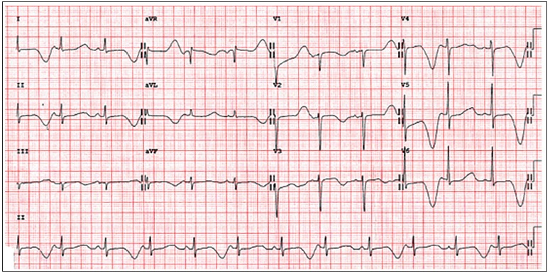 Figure 2: Long QT syndrome electrocardiogram with T-wave alternans