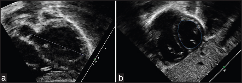 Figure 1: Subxiphoid five-sixth area length echocardiographic assessment of left ventricular (LV) volume. (a) Subxiphoid long axis diastolic frame with aortic annulus to LV apex measurement. (b) Subxiphoid short axis diastolic frame at the midventricular level with area measurement