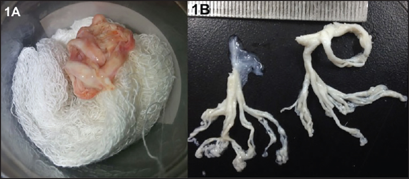 Figure 1: (a) Expectorated cast material in a receptacle. (b) White tenacious mucoid cast showing tree-like branching of the bronchial tree