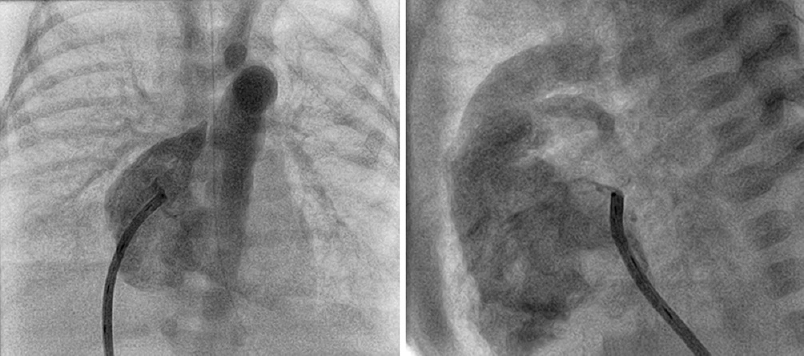 Figure 2: Frontal (left panel) and lateral (right panel) view of the Williams right posterior curve catheter engaging the atrial septum prior to radiofrequency-assisted perforation