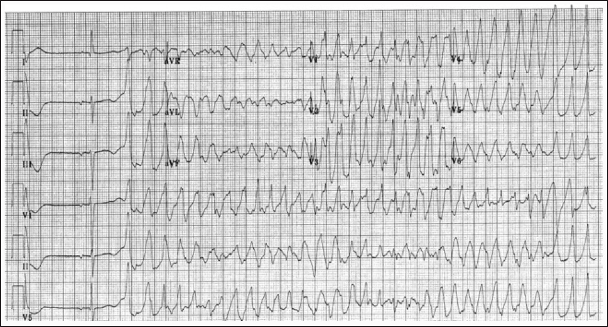 Catecholaminergic Polymorphic Ventricular Tachycardia An Exciting New Era Behere Sp Weindling Sn Ann Pediatr Card