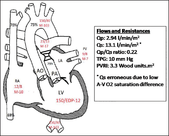 Pulmonary venous hypertension may allow delayed palliation ...