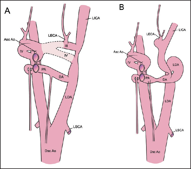 Figure 2: (a) A depiction of normal aortic arch anatomy in the Carnegie Stage 16 embryo. The dashed outline indicates the portion, which we propose involutes or never forms in this anomaly (b) A drawing of the proposed anatomy in our case at this stage of development III = 3<sup>rd</sup> aortic arch, IV = 4<sup>th</sup> aortic arch, otherwise as in [Figure 1]