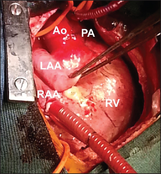 juxtaposed atrial appendages a curiosity with some clinical