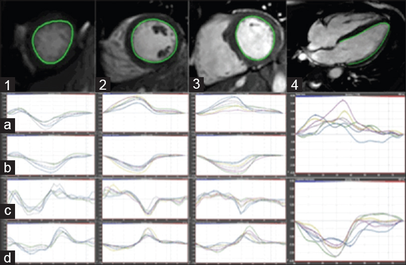 Figure 1: CMR-FT postprocessing. Short-axis apical (1), midventricular (2), basal (3) and 4-chamber long-axis (4) views with relevant endocardial contour drawn in a KD patient. Radial strain (a) and strain rate (b), circumferential strain (c) and strain rate (d), and longitudinal strain and strain rate (4, mid and lower row, respectively) results are provided below each slice. CMR-FT: Cardiac magnetic resonance feature tracking; KD: Kawasaki disease