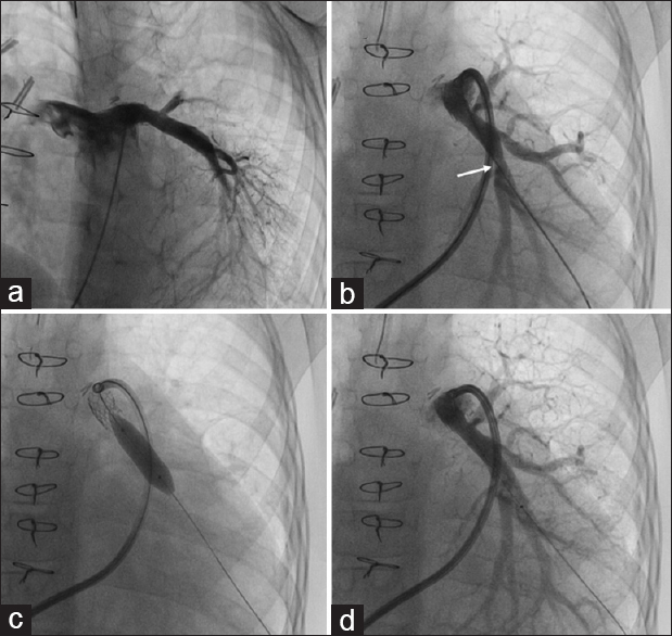 Figure 2: (a) Angiogram 3 months after the initial left pulmonary artery stenting showed patent left pulmonary artery stent. The pulmonary arterial tree is healthy. (b) The distal branch pulmonary artery demonstrates mild discrete segments of stenosis (arrow). (c) Balloon dilatation of the distal pulmonary artery performed to encourage further pulmonary arterial growth. (d) Healthy size, distal pulmonary arteries after redilatations