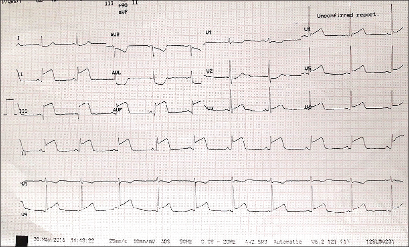 Figure 1: Electrocardiogram on admission showing evidence of inferior wall ischemia