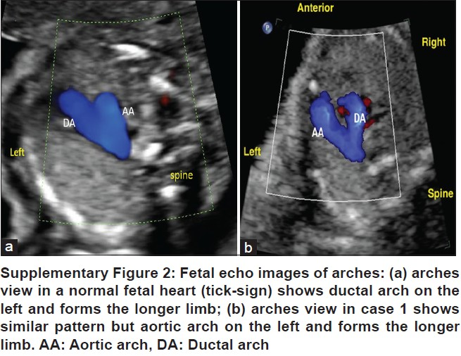 Apparent normal arrangement pattern of three-vessel view in a fetus ...