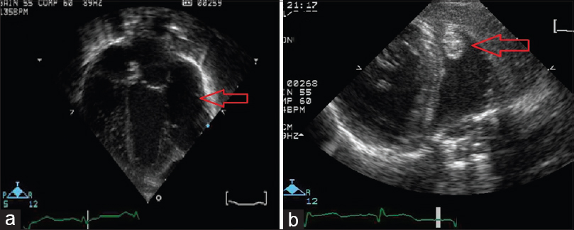 Figure 2: Echocardiogram imaging: (a) Four chamber view, day 1 of life, showing large left ventricle submitral free wall aneurysm. (b) Parasternal short axis view, day 7 of life, showing left atrial aneurysm with hyperechoic mass at apex (arrow), presumed to be a blood clot