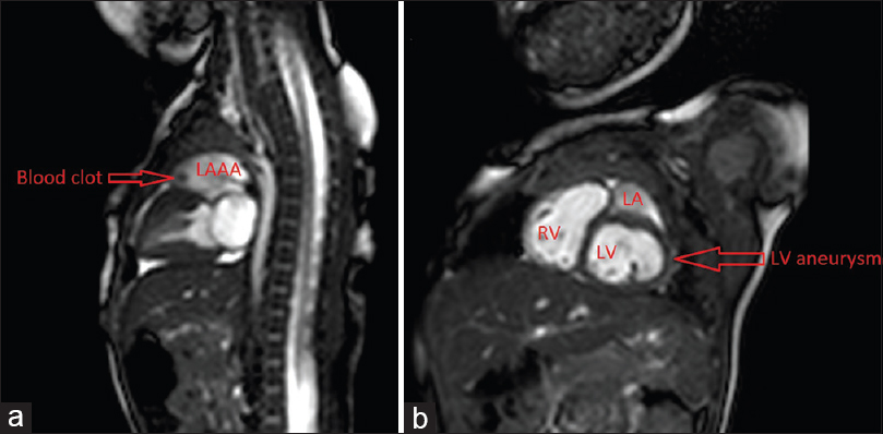 Figure 3: (a) Sagittal plane T2 cardiac magnetic resonance imaging, day 7 of life, showing left atrial appendage aneurysm and hypoechoic blood clot at the ventral aspect. The left ventricular free wall aneurysm can be seen directly below left atrial. (b) Sagittal oblique cardiac magnetic resonance imaging with free wall left ventricular aneurysm with free communication to the left ventricle